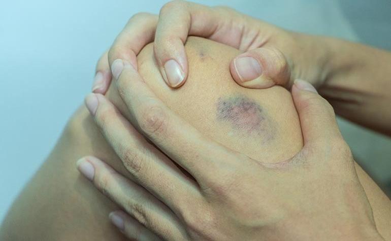 élénkpiros foltok jelentek meg a lábakon