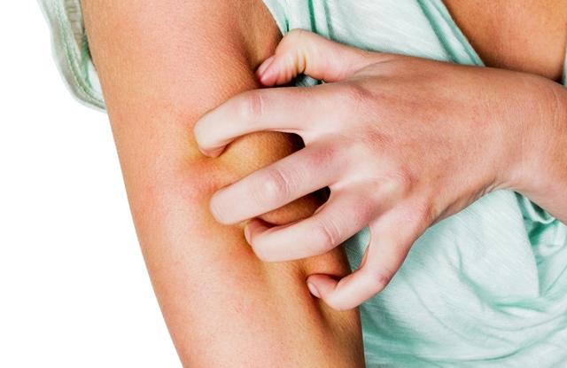 hogyan lehet gyorsan eltávolítani a pikkelysmr kezt lenmag pikkelysömör kezelése
