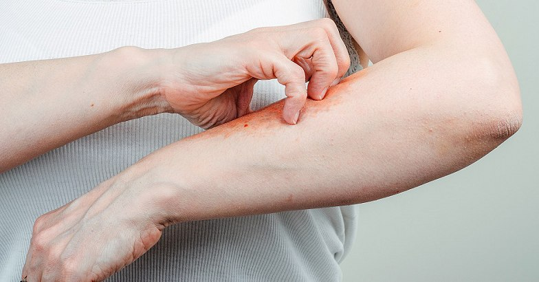 mi a pikkelysömör és kezelése hogyan mossa meg a vörös bőrt a foltoktól