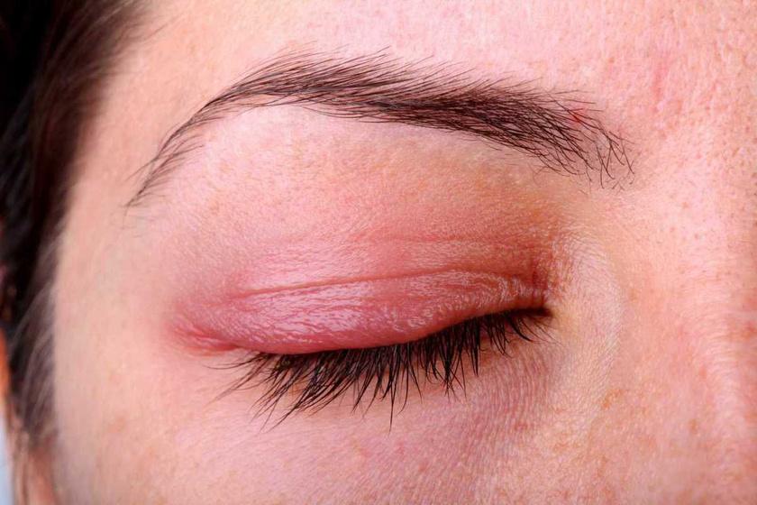 milyen vörös foltok hámlanak le a szemhéjon vörös viszkető foltok az arcon és a nyakon