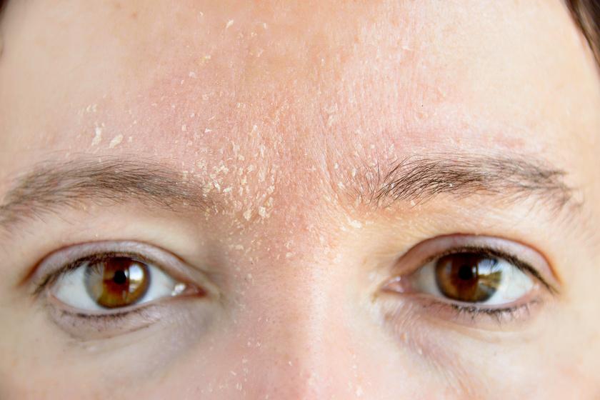 miért vannak vörös foltok az arcon és hámlik