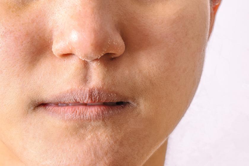 Viszkető homlok - Bőrbetegségek