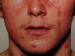 vörös folt jelent meg az arcon és megduzzadt