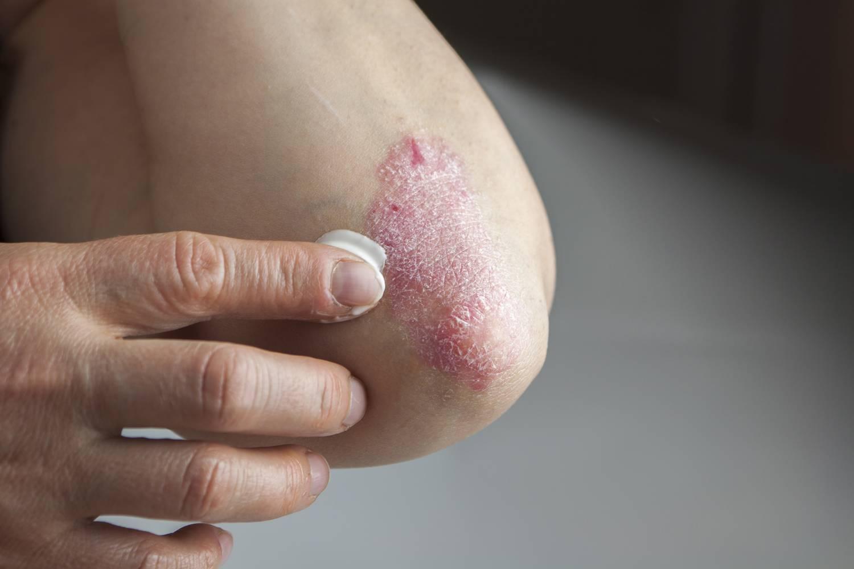 pikkelysömör gyógyszer spanyol pikkelysömör kezelése tioszulfáttal