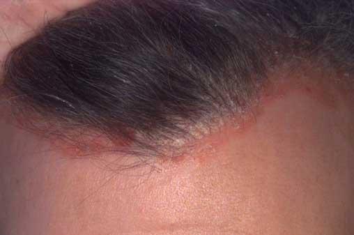 pikkelysömör seborrhea atópiás dermatitis kezelése