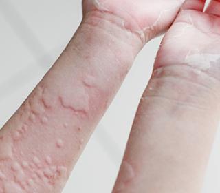 szorongás elleni gyógyszerek pikkelysömörhöz hogyan lehet megszabadulni a pelyhes vörös foltoktól az arcon
