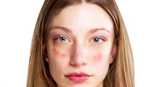piros foltok az arcon fotó mi ez hogyan lehet megszabadulni
