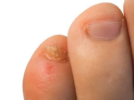 Spain psoriasis kezelése vörös foltok sütnek a kézen