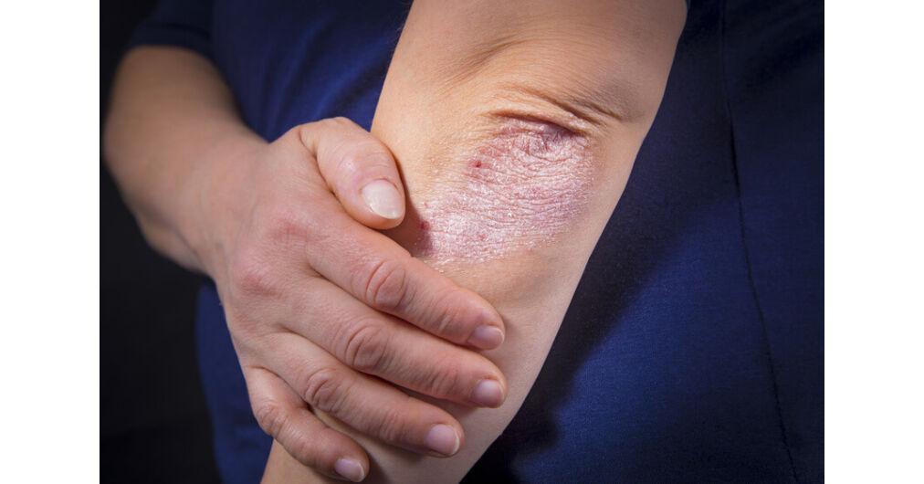 hagyományos orvoslás a pikkelysömör kezelésében hogyan lehet eltávolítani egy vörös foltot a bőrkeményedés után