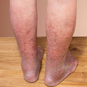 visszér vörös foltok a lábakon