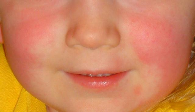 vörös duzzadt folt jelent meg az arcon