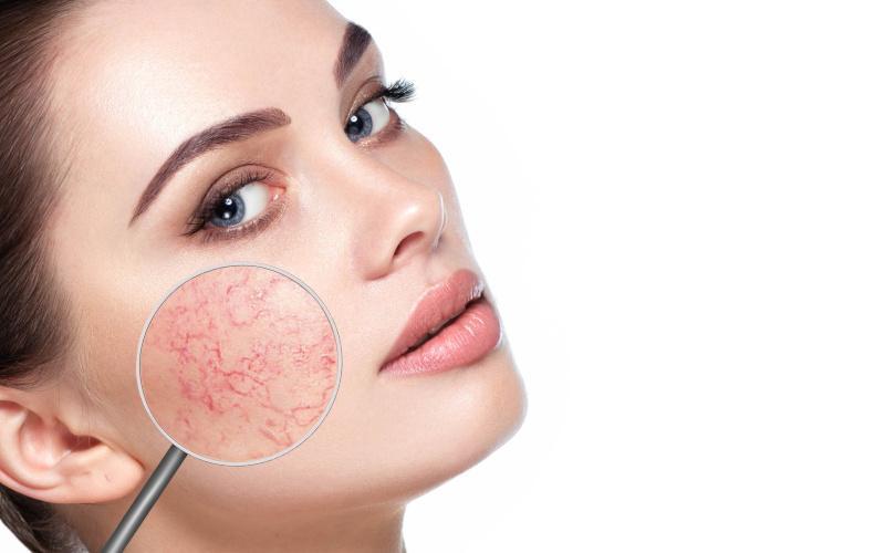 vörös foltok a herpesz arcán vörös foltok jelennek meg, amikor a bőrre nyomják