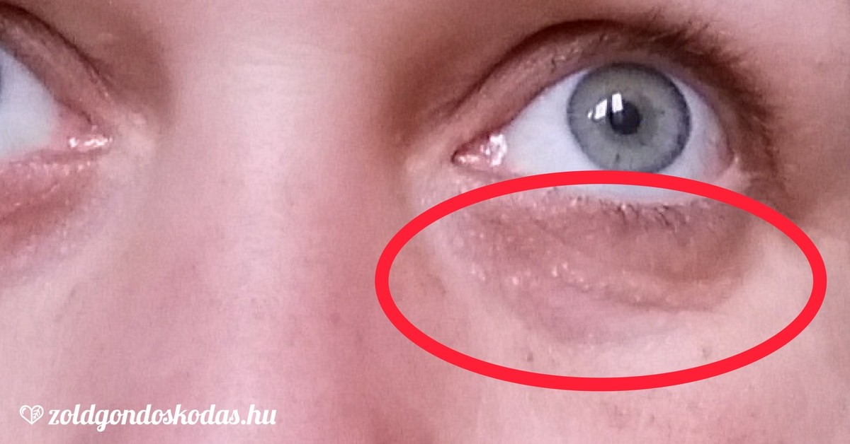 vörös folt az arcon, hogyan lehet eltávolítani