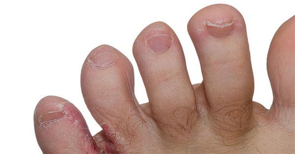 Bőrgomba kezelése - Oxygen Medical