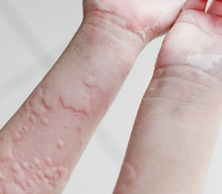 Kiütéses fertőző betegségek