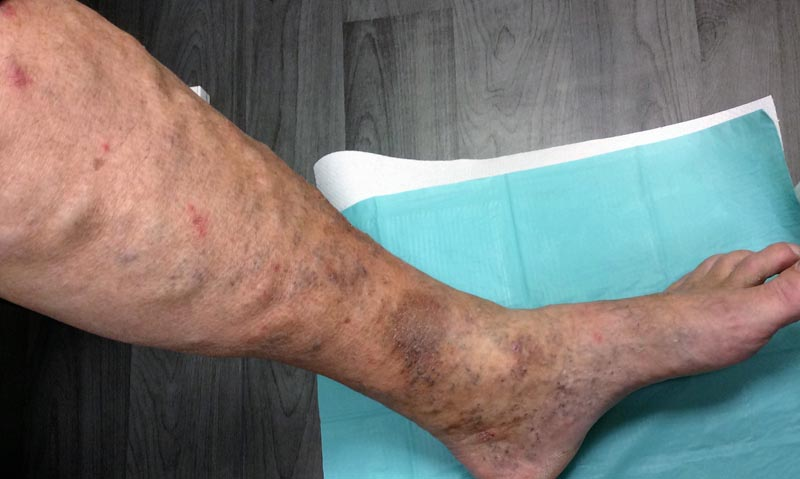 vörös foltok a lábakon lévő ereken Magyar pikkelysmr kezels rendszere