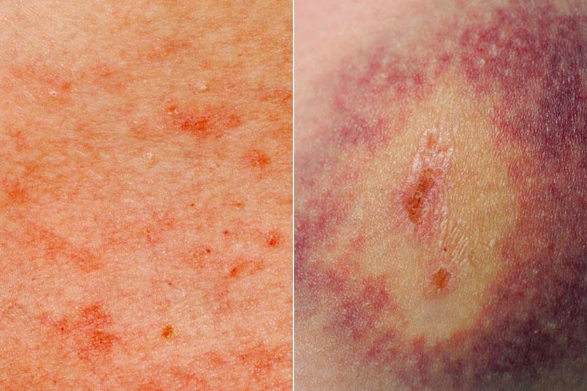 vörös foltok a mell bőrén