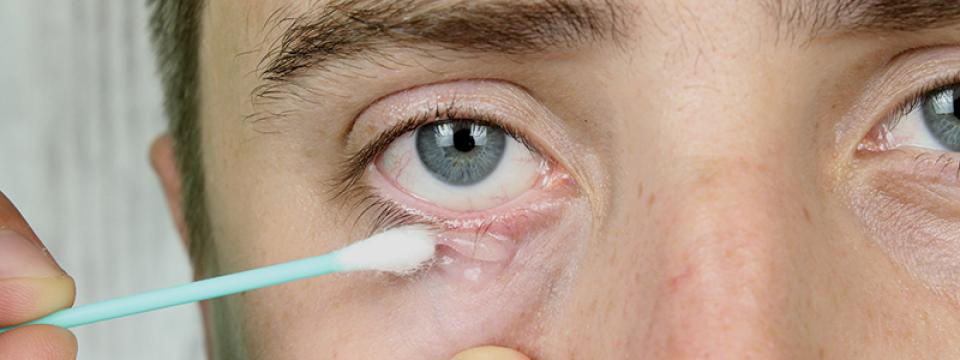 vörös foltok a szem körüli bőrön okoznak miért jelentek meg piros foltok a kezeken
