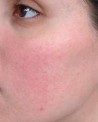 vörös foltok az arcon rosacea Indiai pikkelysömör kezelése