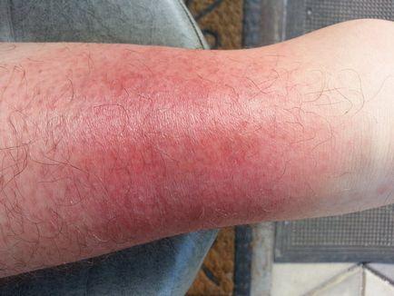 vörös foltok megjelenése a lábakon fotó