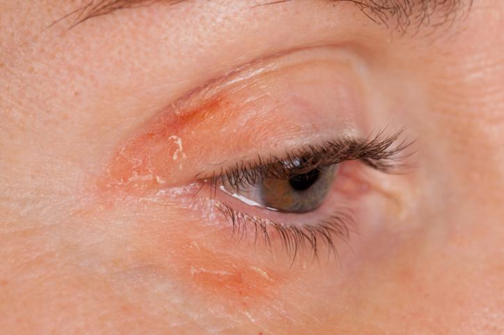 nagy vörös száraz folt a bőrön vörös foltok pattanásokkal az arcon