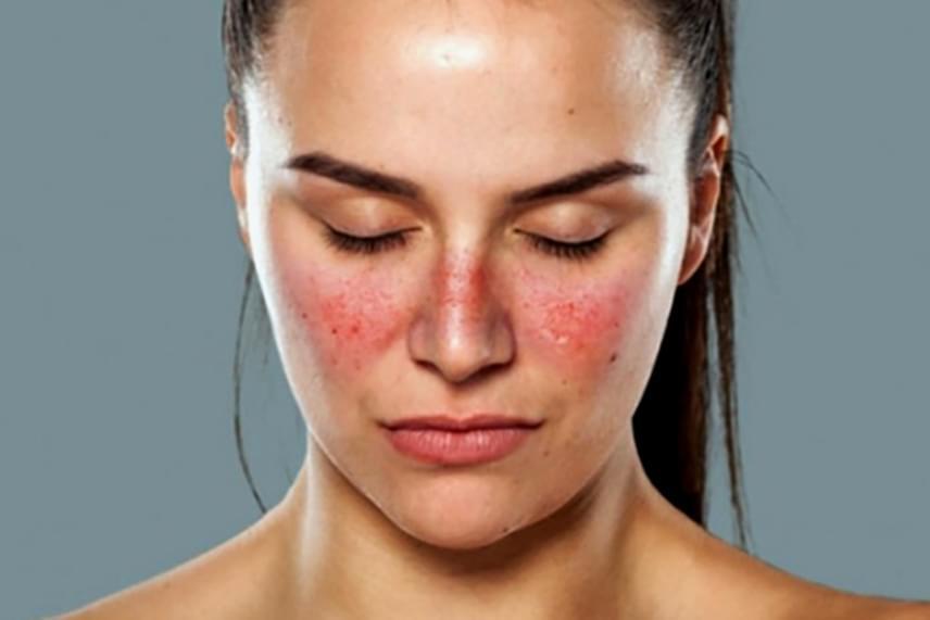 vörös foltokat öntött ki az arcon és a testen
