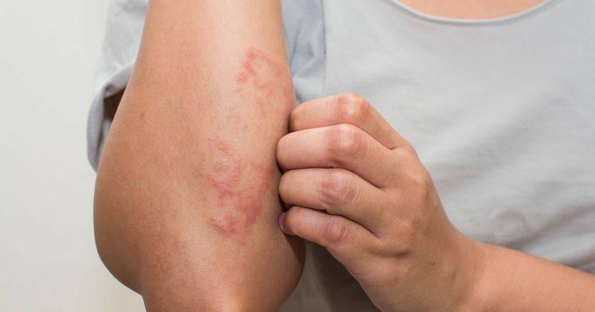 vörös testes foltok viszketnek fotó vörös foltok a lábakon cukorbetegségben
