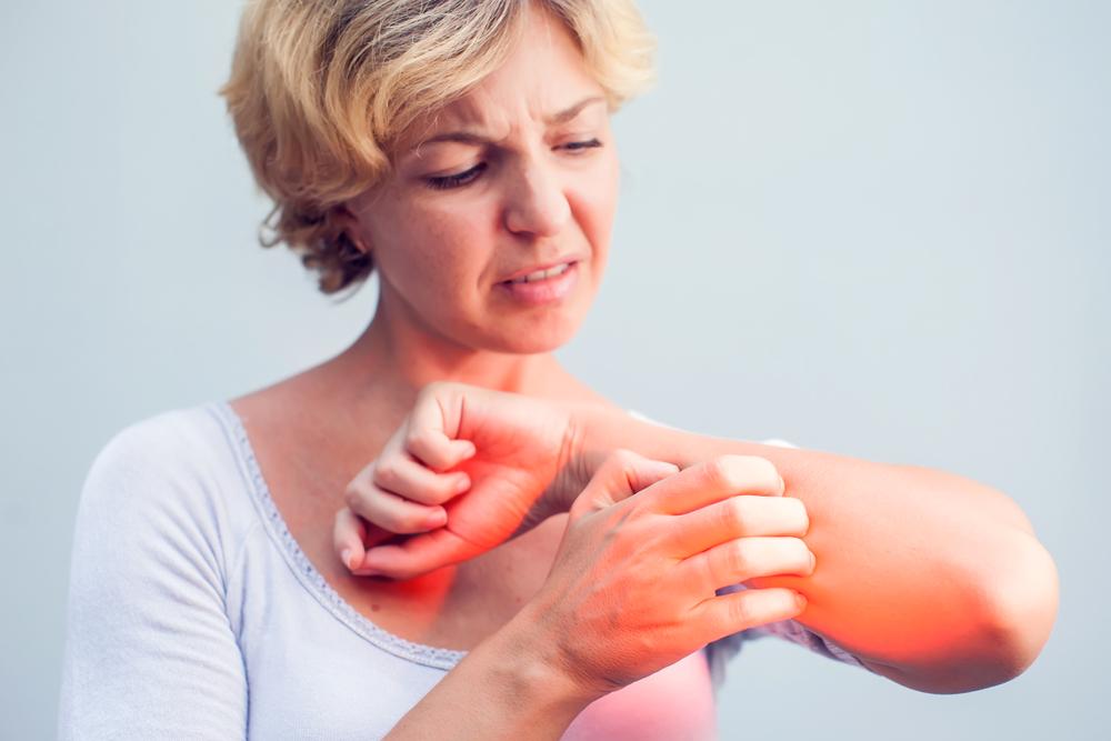 vörös foltok jelentek meg a nyakon és viszkető fotón az egész testben vörös foltok viszketés kezelés