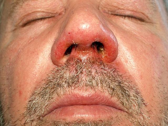 Cheilitis: ezért repedezik be a száj szeglete
