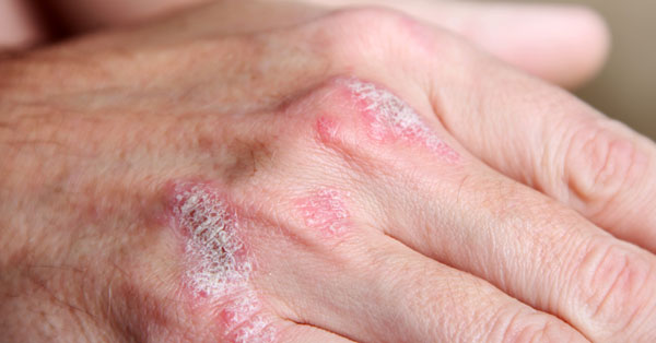 pikkelysömör granulátum kezelése pikkelysömör kezelése safage-ben
