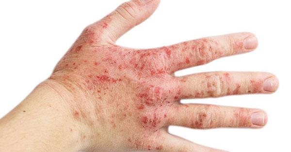 vörös foltok a kezeken és az arc hőmérsékletén