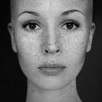 Hogyan lehet enyhíteni a fej viszketését pikkelysömörrel