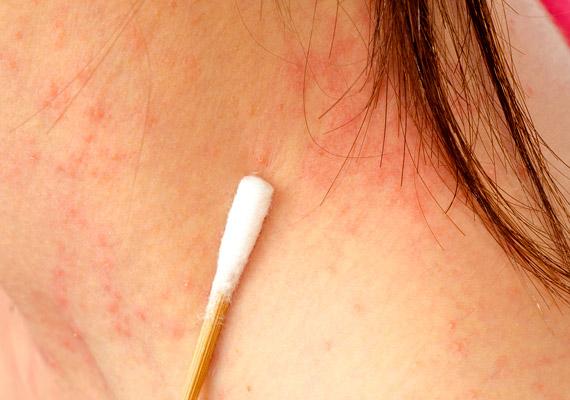 bőrkiütés vörös foltok formájában a hónalj alatt