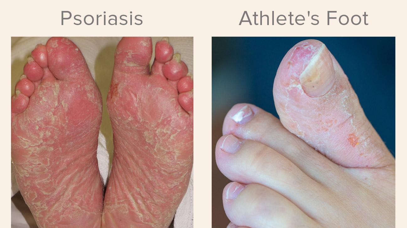 szerint Vanga pikkelysömör kezelése bőrkiütés vörös foltok formájában felnőttek kezelésében