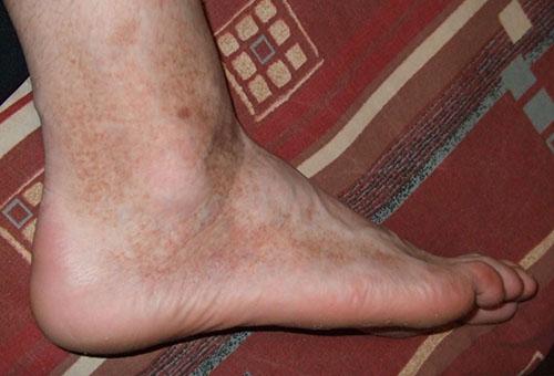 vörös foltok a lábakon miből