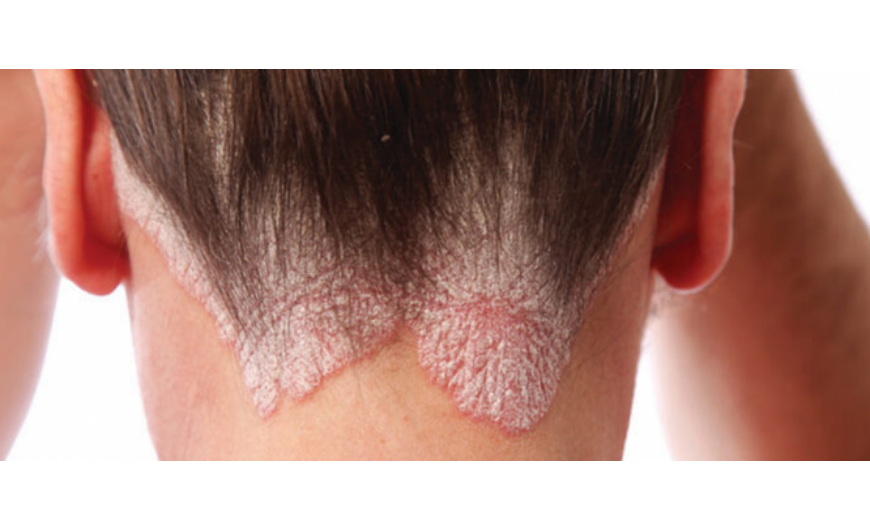 vélemények a pikkelysömör kezeléséről stelarral az arcot vörös foltok borítják és süt