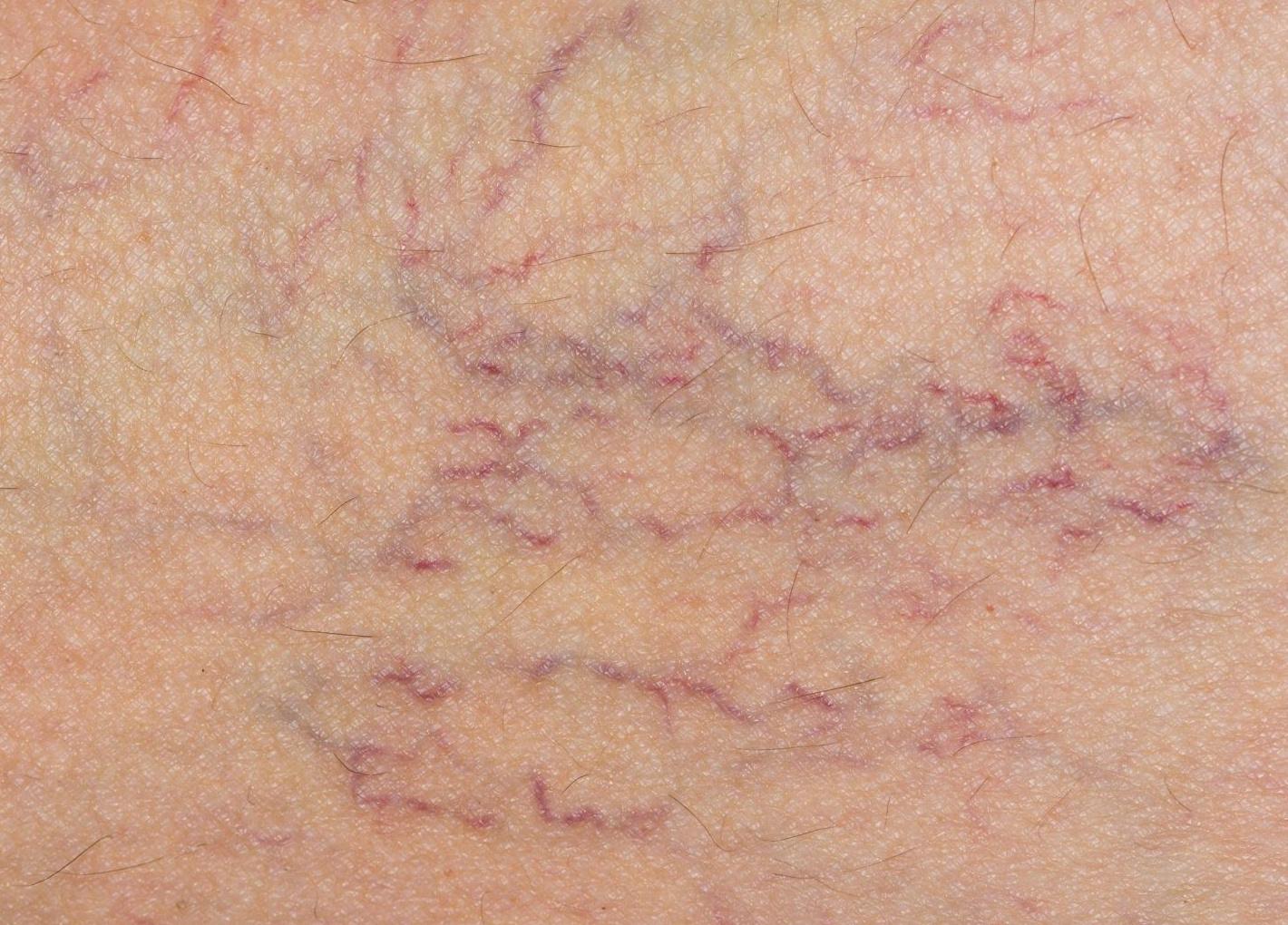 vörös foltok mastitis kezeléssel