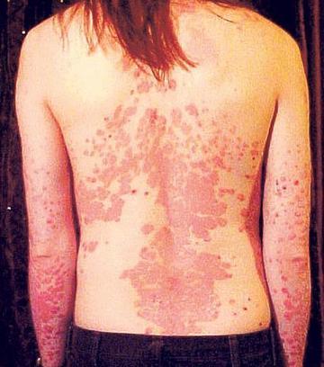 A pikkelysömör (psoriasis) természetgyógyászati terápiája.