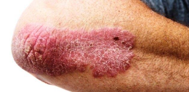 pikkelyes bőrkiütések vörös foltok formájában