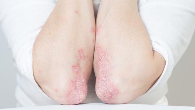 polyoxidonium pikkelysömör kezelése a bőrt vörös foltok és pelyhek borítják