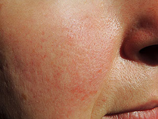 vörös foltok az arcon hasnyálmirigy- gyulladással