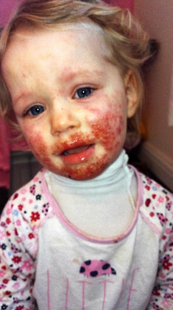 Vörös folt, hólyagok - Bőrbetegségek