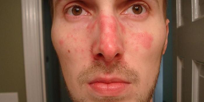 a hideg arcát vörös foltok borítják)