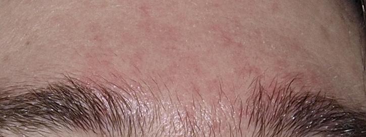 vörös foltokkal és hámló arcbőr