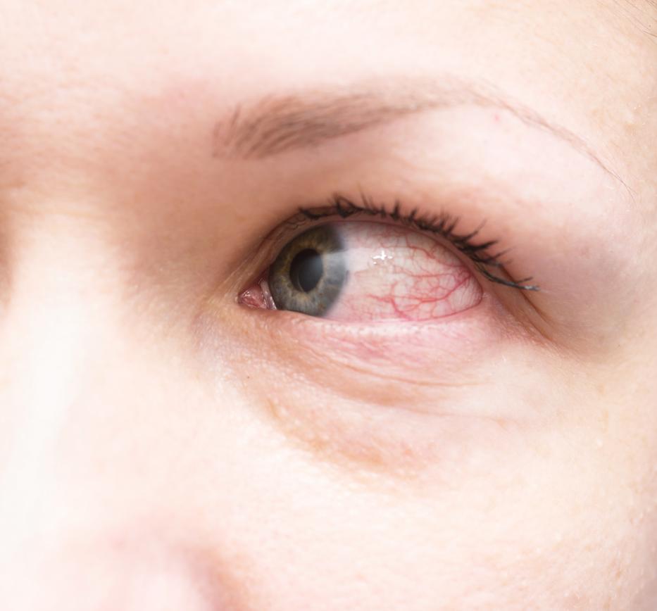 vörös pikkelyes folt a szem közelében