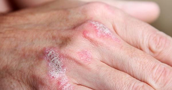 vörös ovális foltok viszketnek a bőrön ahonnan a kezek vörös foltokban vannak