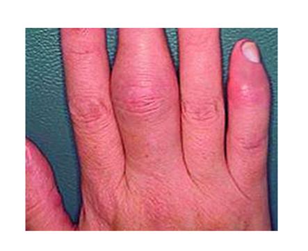 Lábízületek, ahol és hogyan kell kezelni Az ízületi fájdalom típusai