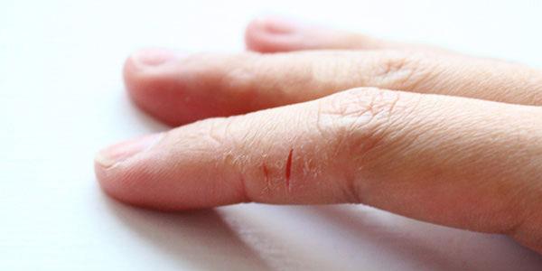 pikkelysömör kezelése húrolajjal vörös száraz foltok a kezeken mi ez