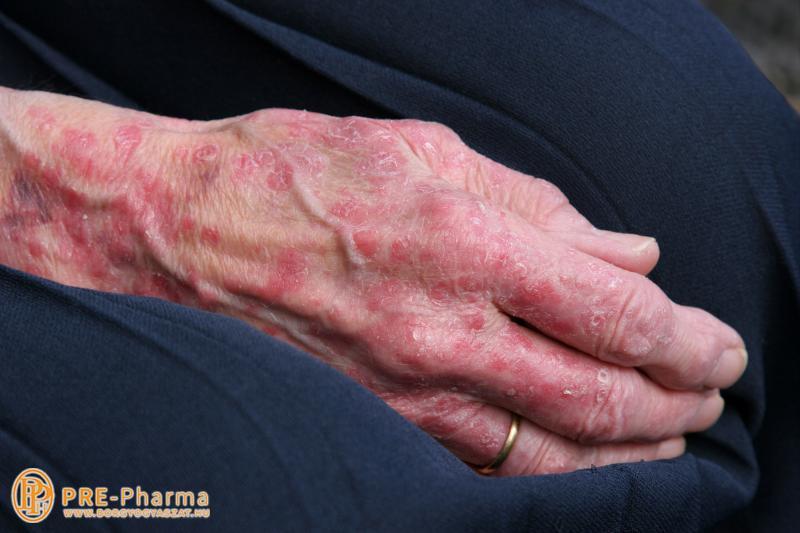 a pikkelysömör kezelésének súlyosbodása népi gyógymódokkal