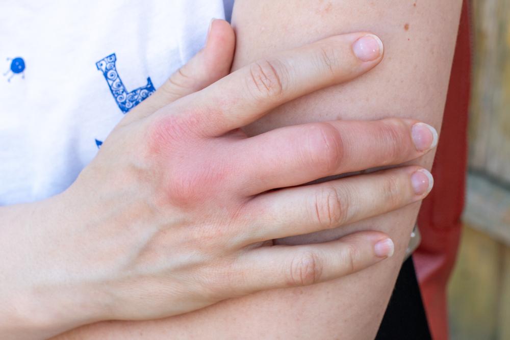 a tenyéren vörös foltok fájnak és viszketnek hogyan lehet eltávolítani a vörös foltokat a leégéstől